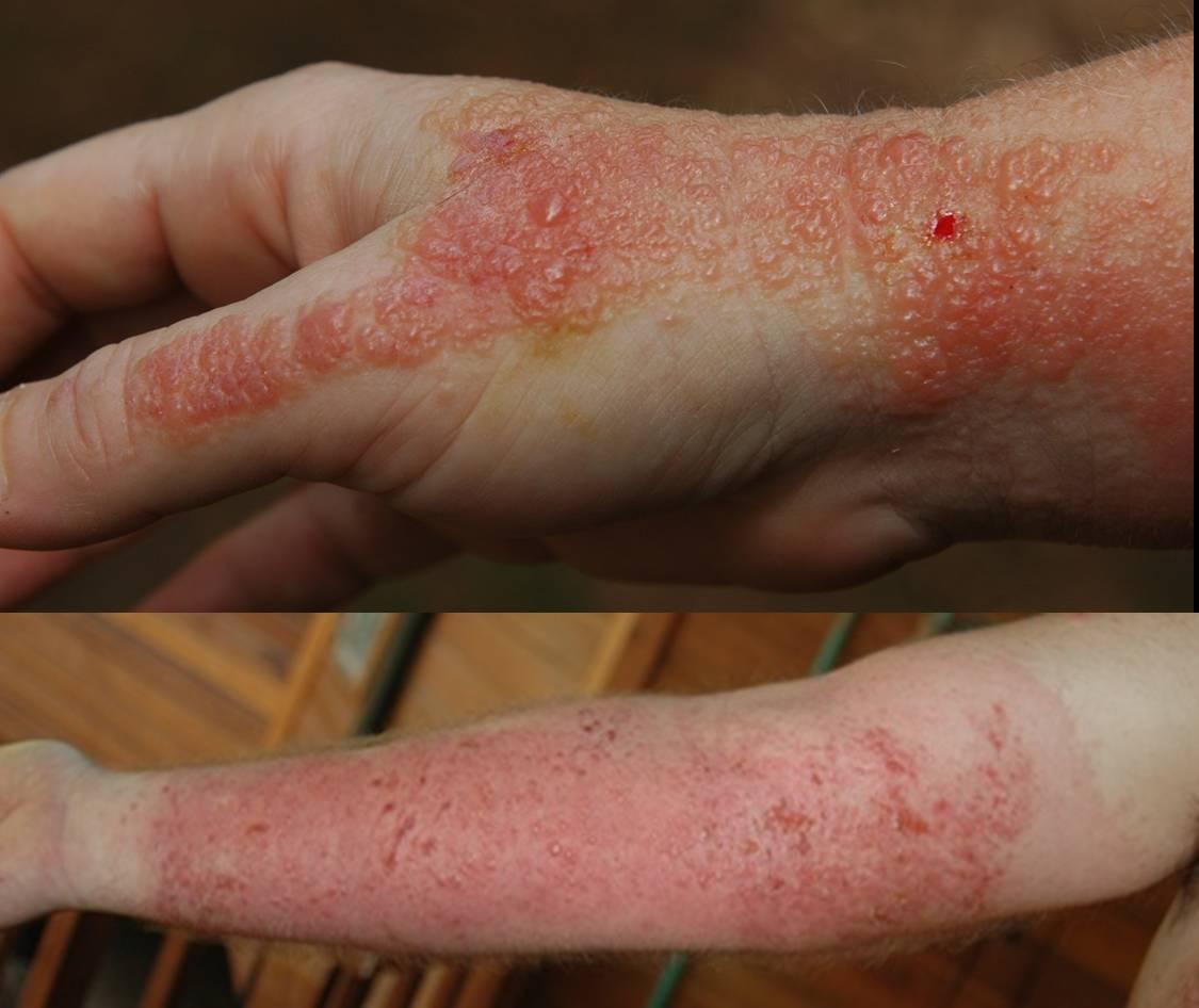 Blister Rash On Arms